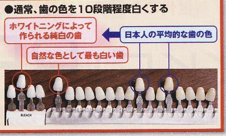 歯の白さシェード